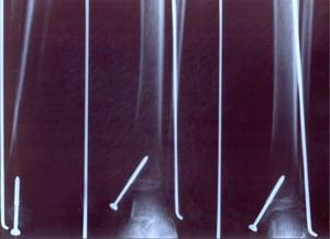 Broken leg x ray with screws inside